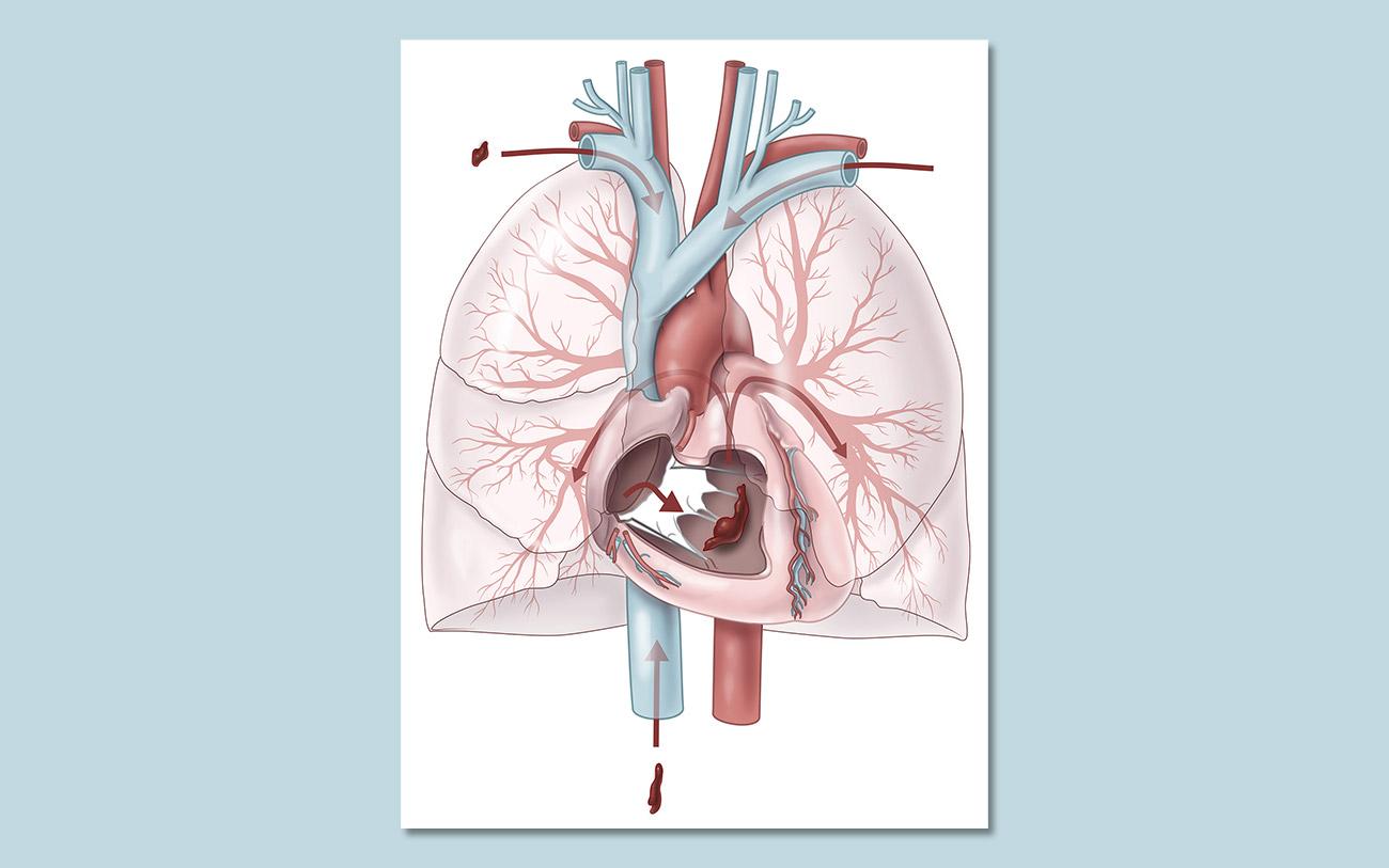 Mockup der Übersicht des des menschlichen Herzens, der Lunge und der großen Gefäße in die akut mehrere Lungenembolien über die rechte Herzkammer in die Pulmonalarterien eindringen