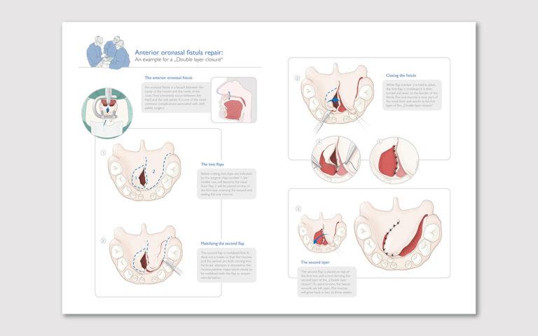 Layout der Illustrationen zum Verschluss einer Gaumenspalte