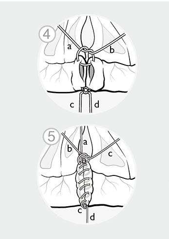 Wissenschaftliche Illustration, Mikrochirurgie: Die offenen Enden des Dünndarmes werden mit einer fortlaufenden Naht vernäht.