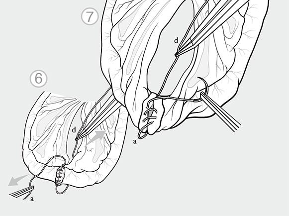 Wissenschaftliche Illustration, Mikrochirurgie: Die vernähte Stelle wird gedreht und auf der Rückseite ebenfalls mit einer fortlaufenden Naht vernäht.
