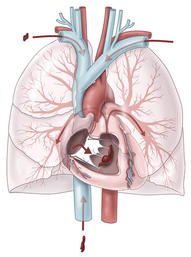 Mehrere Lungenembolien verschiedener Größe dringen in die rechte Pulmonalarterie ein.