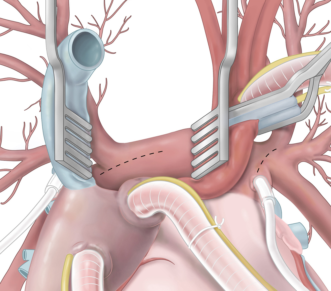 Die Vena Cava und die Aorta werden gespreizt um die rechte Pulmonalarterie freigzulegen. Diese wird anschließend inzisiert.
