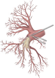 Medizinische Illustration der Detailansicht der rechten Pulmonalarterie. Nachdem diese freigelegt und inzisiert wurde, wird ein Saug-Dissektor eingeführt. Dieser befreit die Arterienwand nach und nach von der verwachsenen Fibrose. Diese kann anschließend mit einer Pinzette entfernt werden.