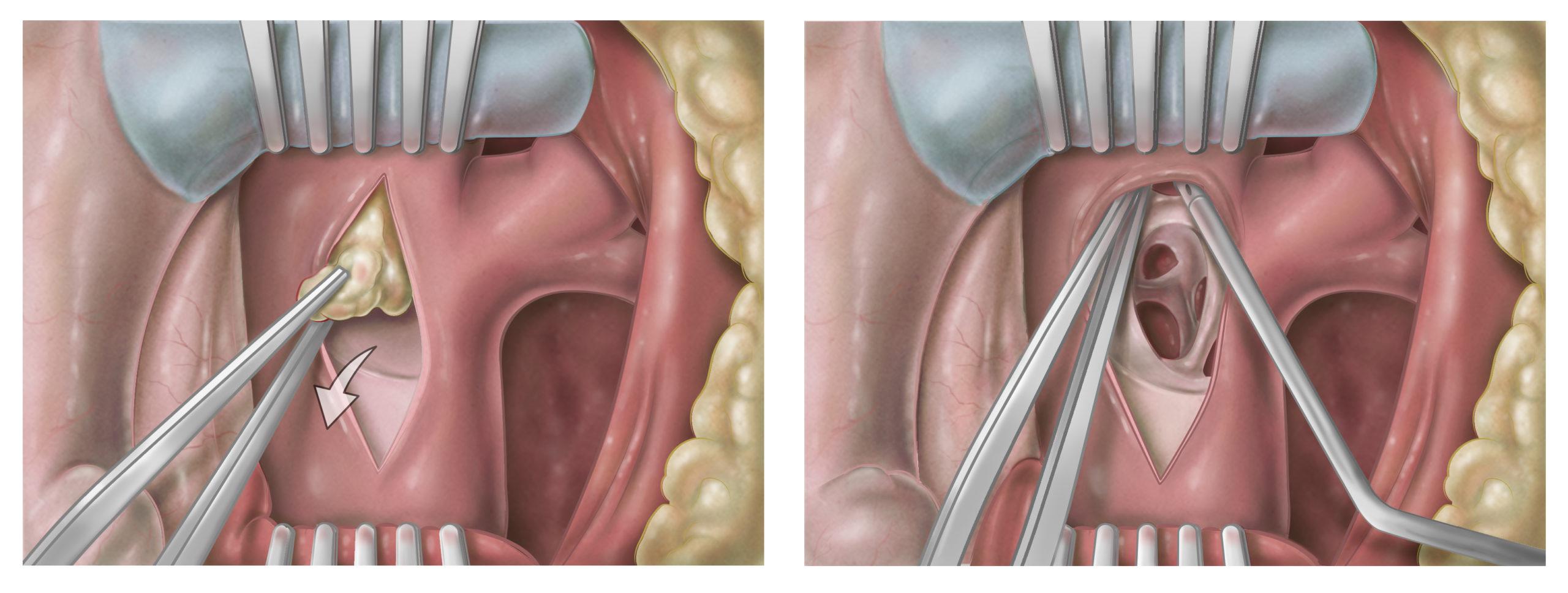 Detailansicht der rechten Pulmonalarterie aus der Sicht des operierenden Chirurgen. Die Fibrose wird mit der Pinzette entfernt. Der anschließende Blick in die eröffneten Pulmonalarterien zeigt, dass das fibrotische Material restlos entfernt wurde.