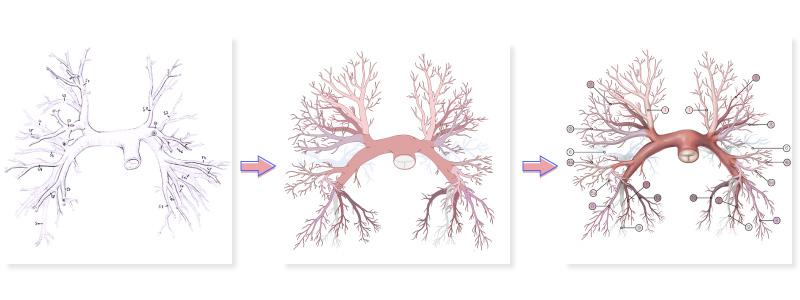 Beispiel für den Fertigungsprozess einer medizinischen Illustration