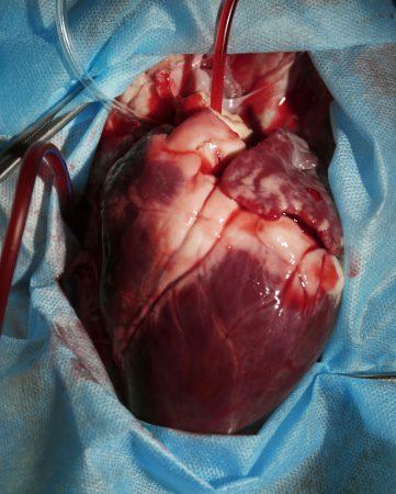 Foto eines offenen Herzens bei einer Operation